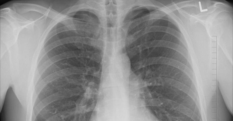 x ray_longen